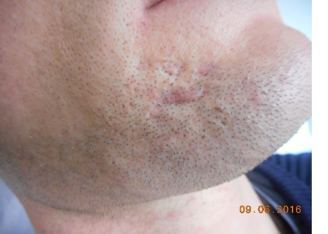 Scar Removal Melbourne | Repair Facial Scarring | AASC