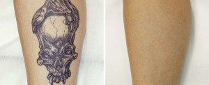 tattoo_removal_fotona