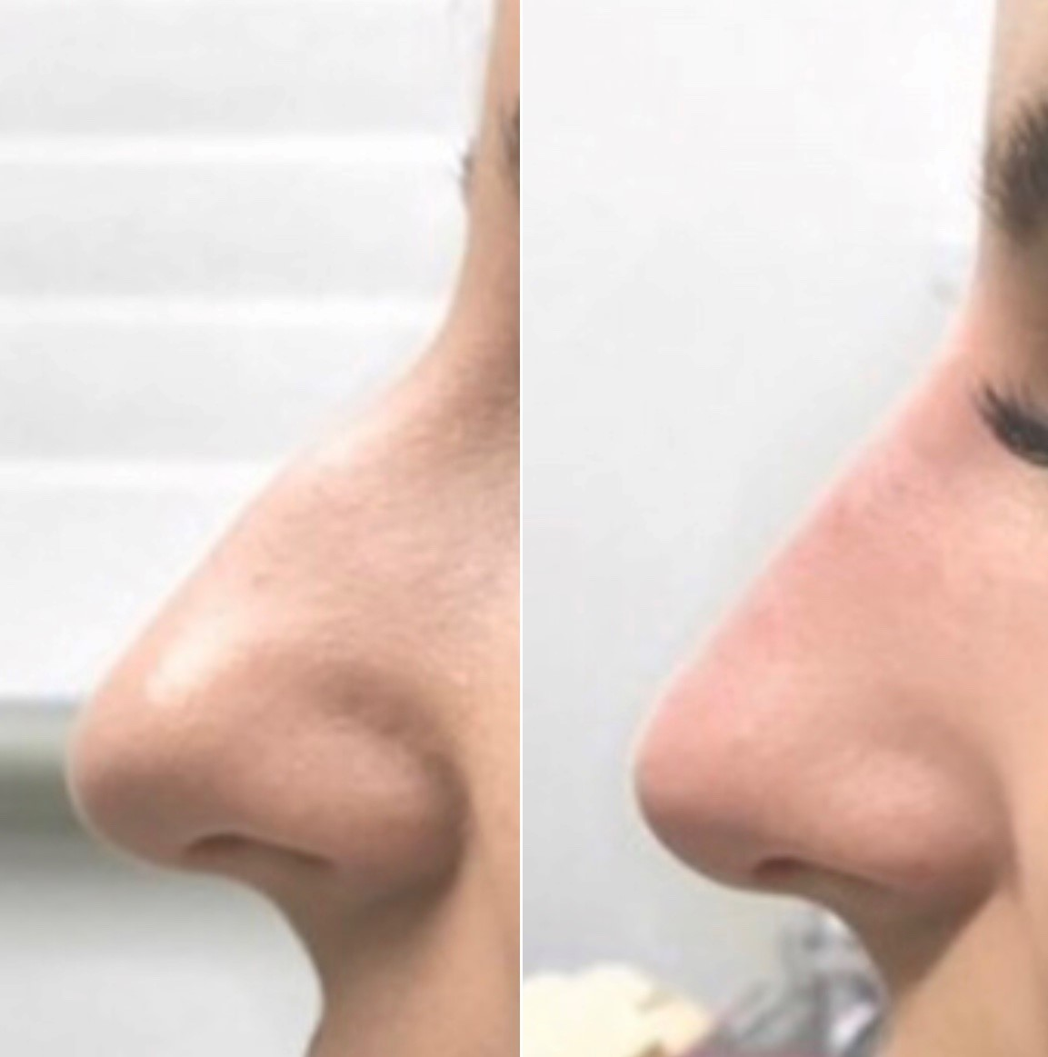 Non Surgical Rhinoplasty Melbourne | Nose Job & Reshaping | AASC